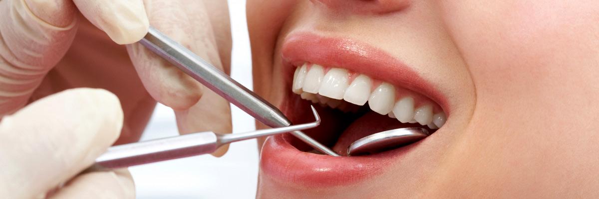 prevent - Horizon Dental